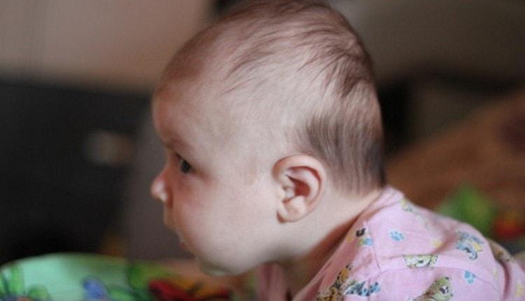 частые признаки рахите у детей до 1 года это плоский затылок.