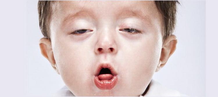 какие антибиотики прописывают при ларингите у детей