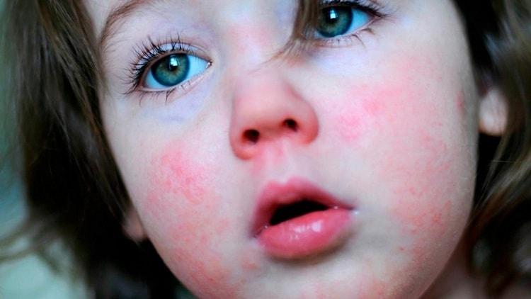 Вначале сыпь распространяется на лице, но не затрагивает носогубный треугольник.