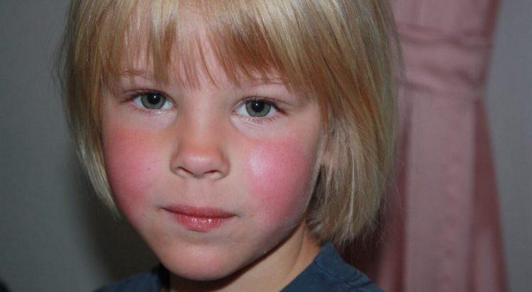 На фото видна сыпь при скарлатине у детей на ранних этапах болезни.