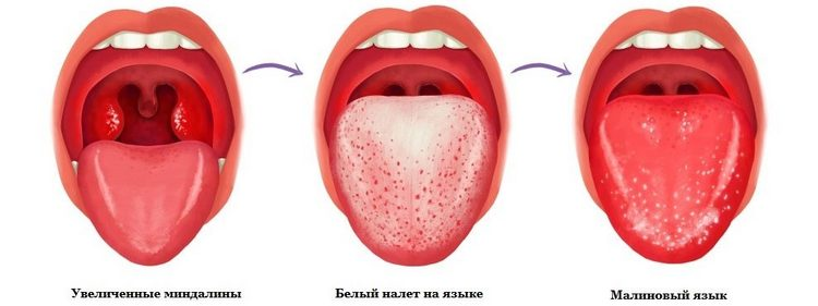 Язык сначала покрывается белым налетом, а затем становится малиновым, на нем сильно увеличиваются сосочки.