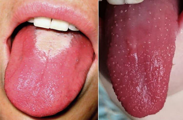 На фото видно, как выглядит язык при скарлатине у детей.