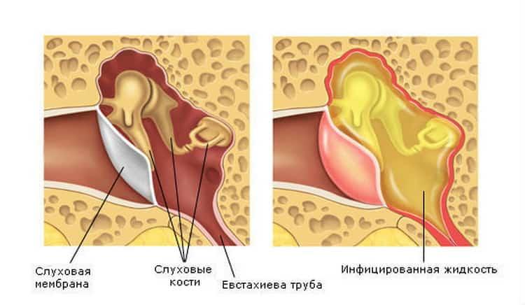 Как проявляется вирусная ангина у детей