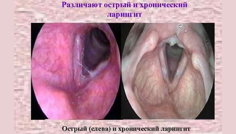 острый и хронический ларингит