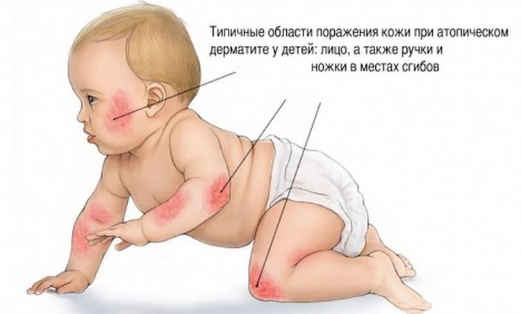 как выглядит аллергический дерматит у детей на фото