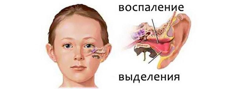 основные причины возникновения экссудативного отита у ребенка