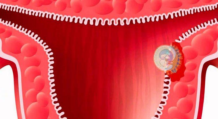 То, на какой день после овуляции произойдет имплантация эмбриона, зависит от индивидуальных особенностей каждого женского организма.