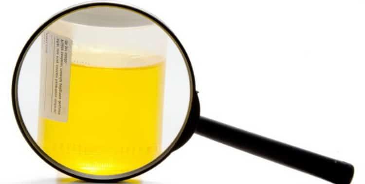 Что означает повышенный уровень оксалатов в моче у ребенка