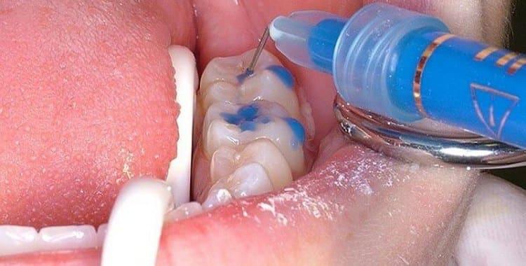 Серебрение молочных зубов у детей