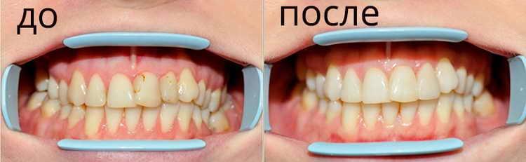 эффект от фторирования зубов детям