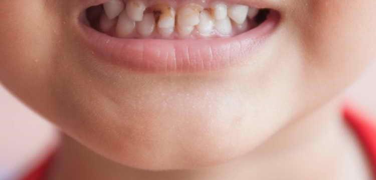 фторирование зубов детям противопоказания