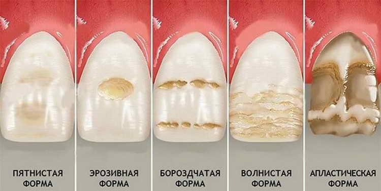 Истончение зубной эмали и фторирование зубов