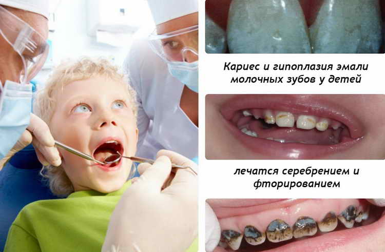 как происходит фторирование зубов у детей