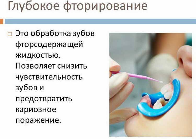 Отличиеглубокого фторирования зубов у детейот фторирования гель-лаком