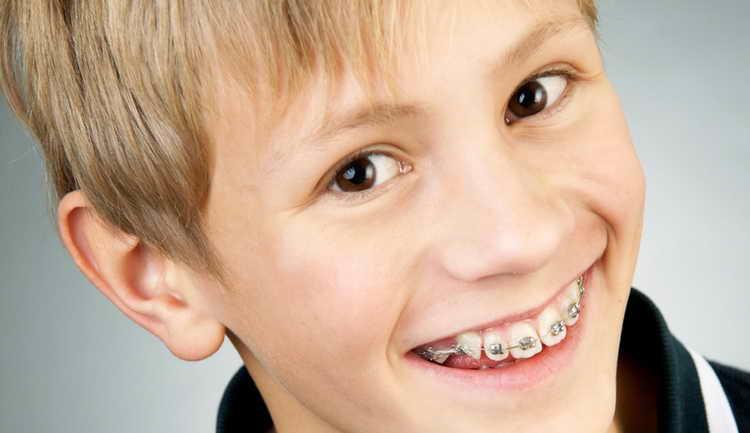 Брекеты и фторирование зубов