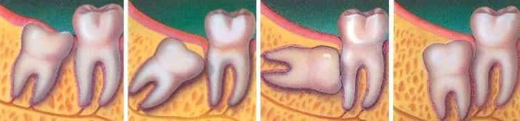 что делать если кривые молочные зубы у ребенка