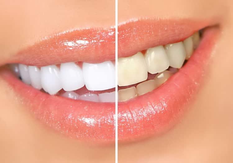 как выровнять зубы у ребенка