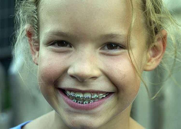 Помогут ли брикеты при кривых зубах