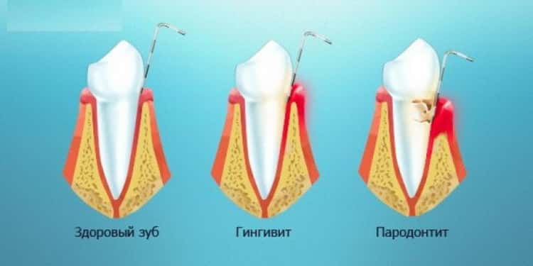 Почему возникают осложнения при кривых зубах