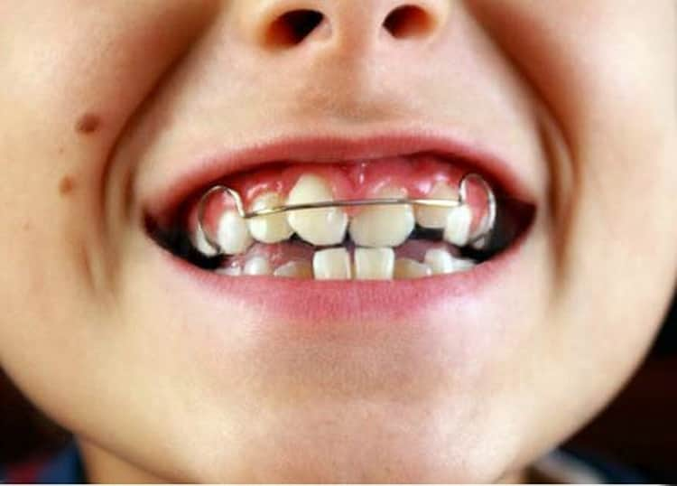 пластина на зубы детям: фото