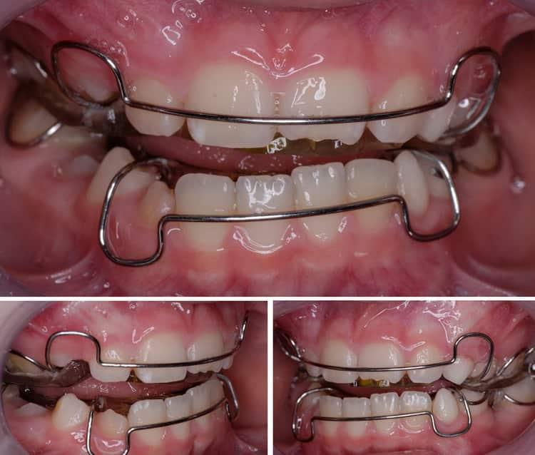 пластины для выравнивания зубов у детей