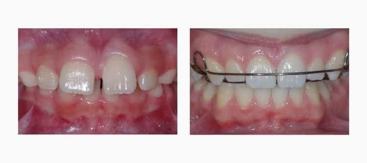 как ставят пластины на зубы детям