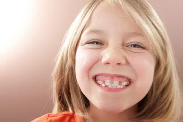 Зачем носят пластины для зубов для детей