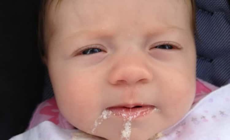 врожденная пневмония у новорожденных: причины и последствия