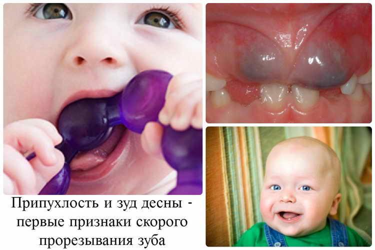 как понять что у ребенка режутся зубы