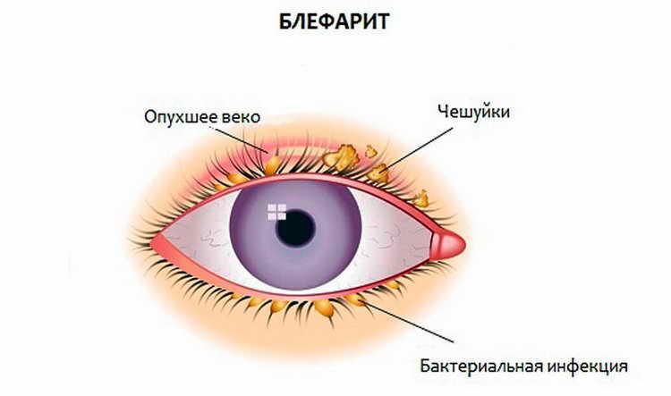 капли для глаз тобрекс для детей