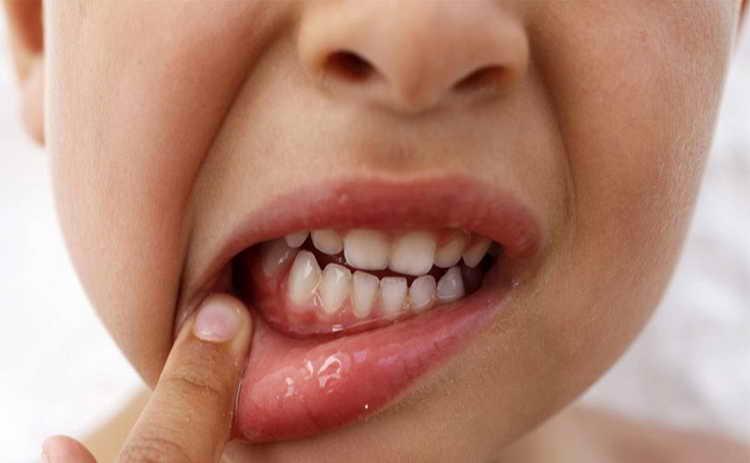 у ребенка после удаления зуба опухла щека