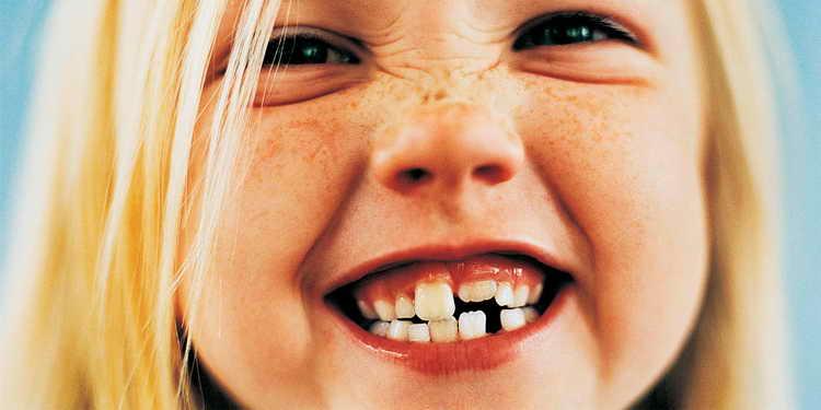 удаление сверхкомплектного зуба у ребенка