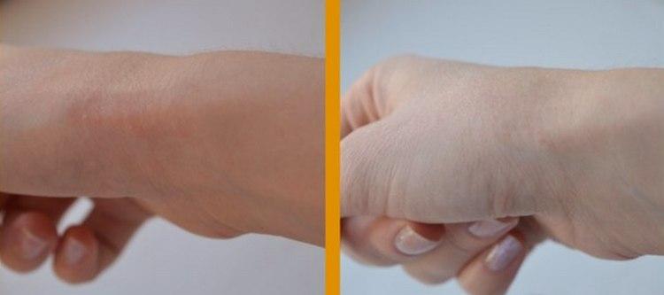 Препарат достаточно быстро снимает отечность, зуд при аллергии.