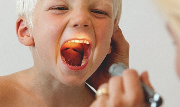 назначают этот препарат при различных заболеваний горла.