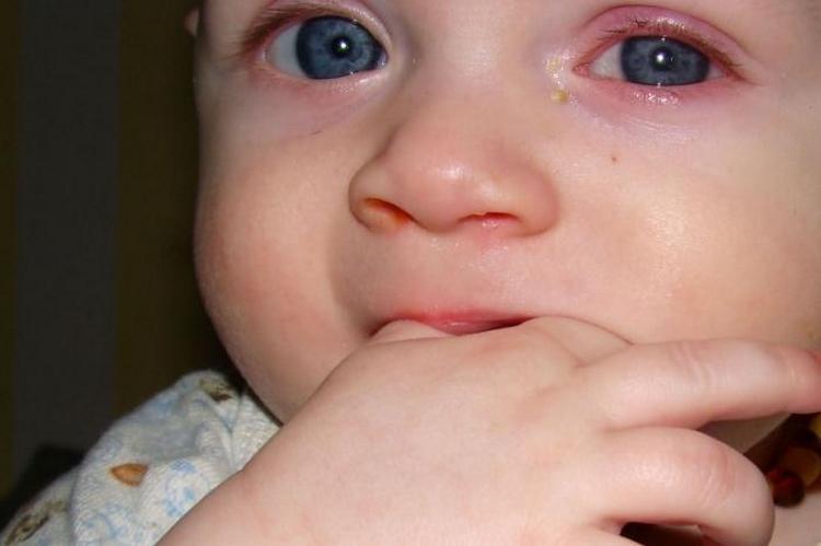 Глазные капли Левомицетин могут назначить даже для детей до года.