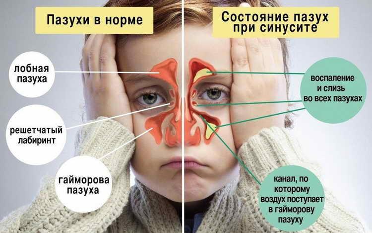 назонекс отзывы для детей при аденоидах