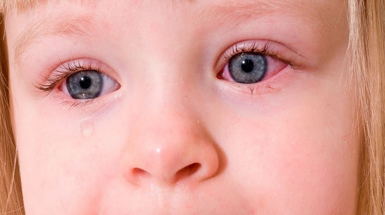 Конъюнктивит у ребенка может развиться из-за вирусов, бактерий или аллергии.