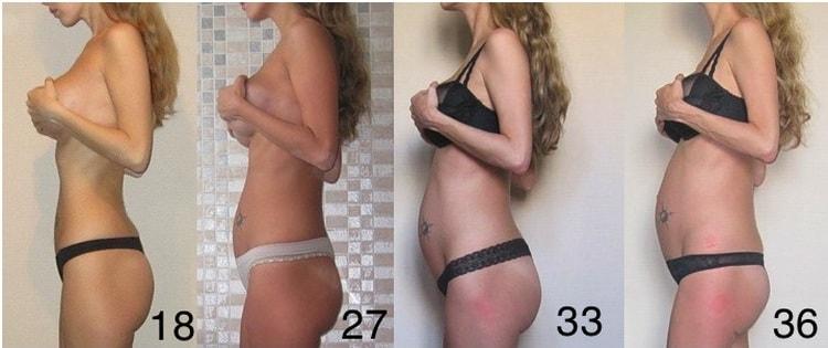 То, во сколько при беременности начинает расти живот, зависит и от спортивной формы и физической активности мамы.