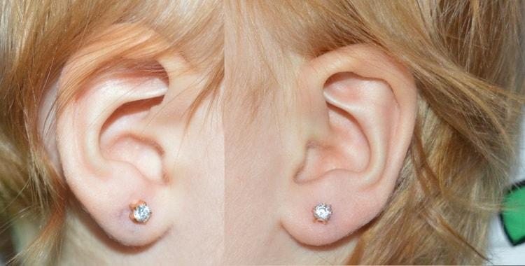 Прежде чем решить, когда прокалывать уши девочке, нужно взвесить все за и против.