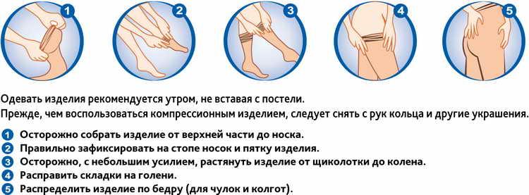 компрессионные чулки во время беременности