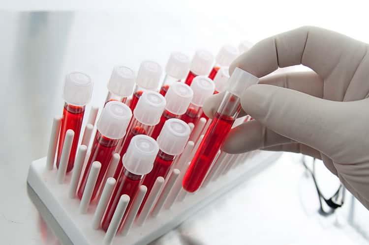 Повышенный гемоглобин у ребенка: что делать